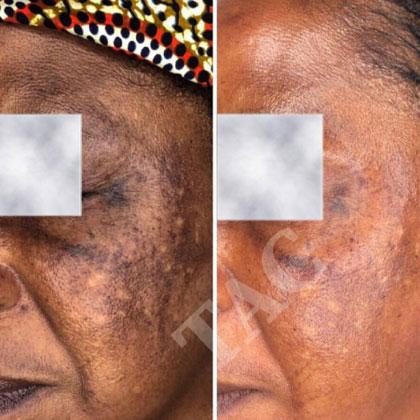 Laser treatments for skin pigmentation and rejuvenation